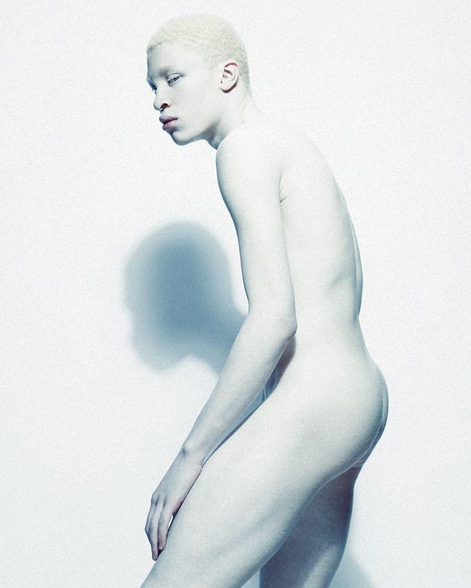 Nude albino women pictures — pic 11