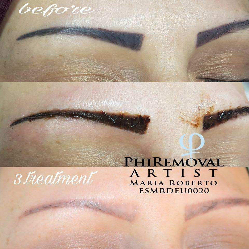 Eyebrows removal procedure by maria roberto eyebrow