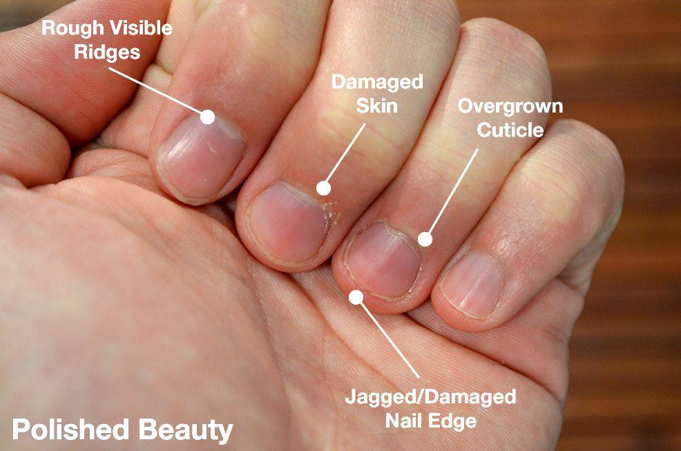 Before A Men S Manicure
