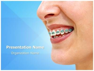Download our professionally designed braces ppt template this download our professionally designed braces ppt template this braces powerpoint template is affordable toneelgroepblik Image collections