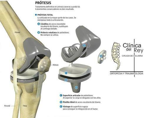La Prótesis Total De Rodilla Consiste En Sustituir La Articulación De La Rodilla Le Cirugía De Columna Articulación De La Rodilla Actividades De La Vida Diaria