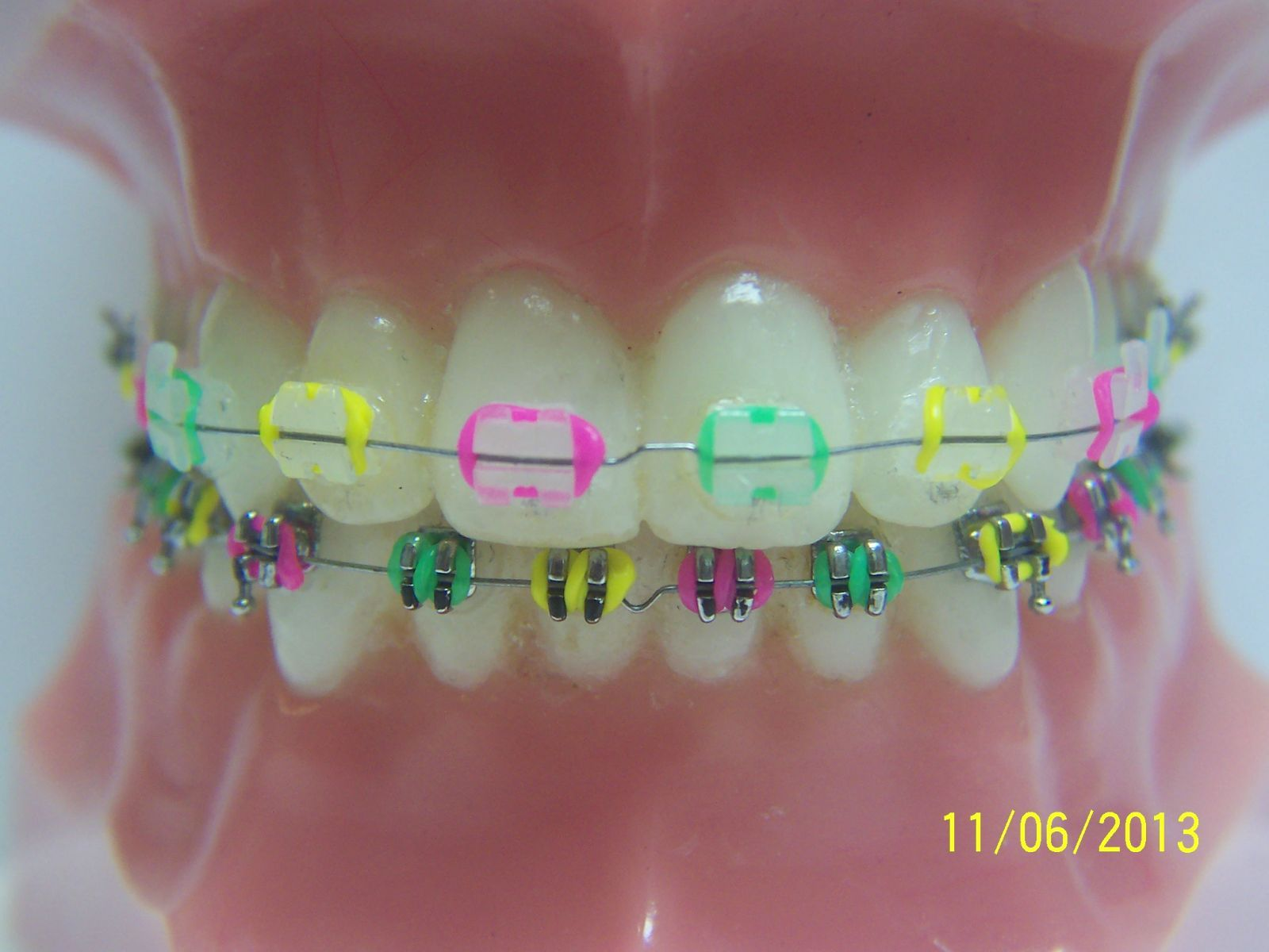 Fashionable Braces - General Dentist, Orthodontics/Braces | Nicholas ...