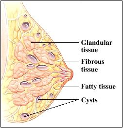 breast tumor cystic fibroid