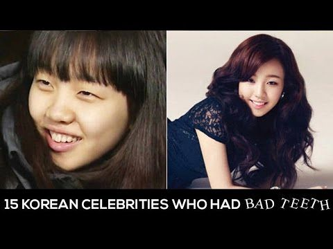 15 Korean Celebrities Who Had Bad Teeth Bad Teeth Korean Celebrities Celebrities