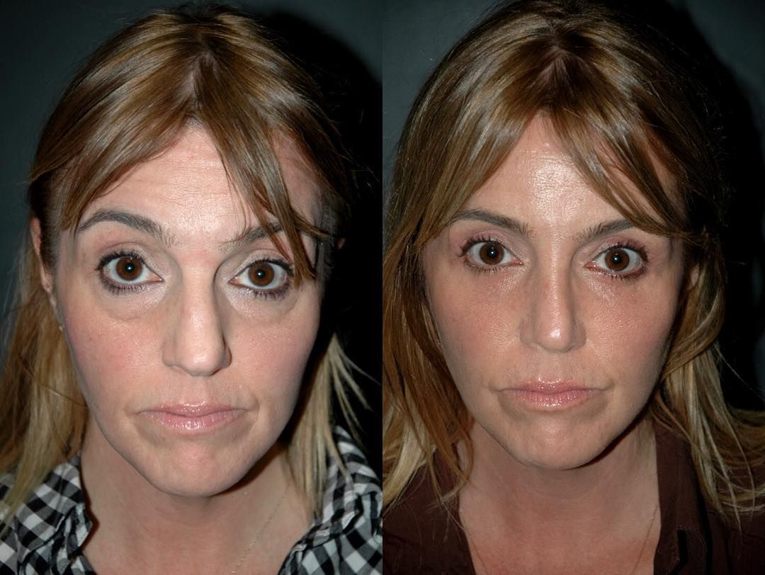 Rhinoplasty Before & After Dr. Andrew Jacono in 2020