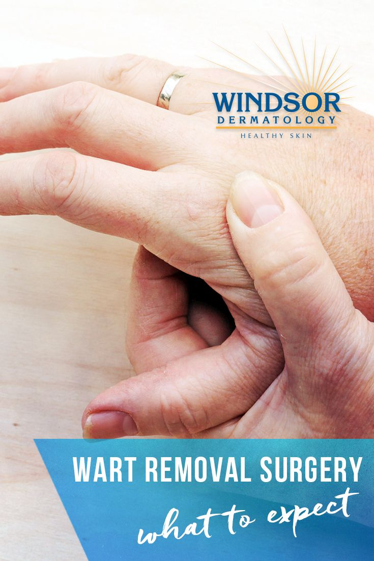 Wart Removal Surgery | Skin Care | Warts, Wart treatment, Surgery