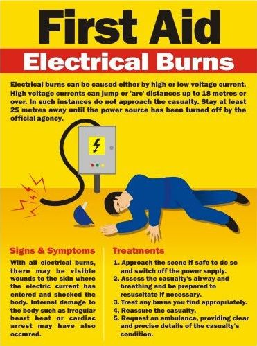 First Aid Tips for Electrical Burns