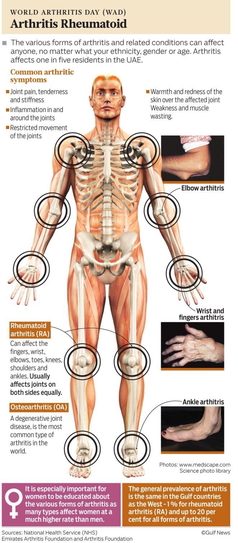Heavy Smokers At Greatest Risk For Rheumatoid Arthritis Rheumatoid Arthritis Knee Arthritis Arthritis