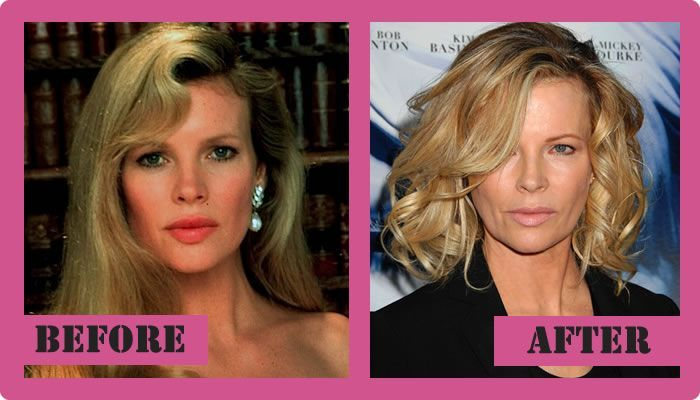 Kim basinger photos before and after 7