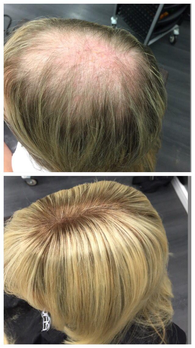 Haarverlangerung manner vorher nachher