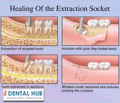 The healing process of the extraction socket starts