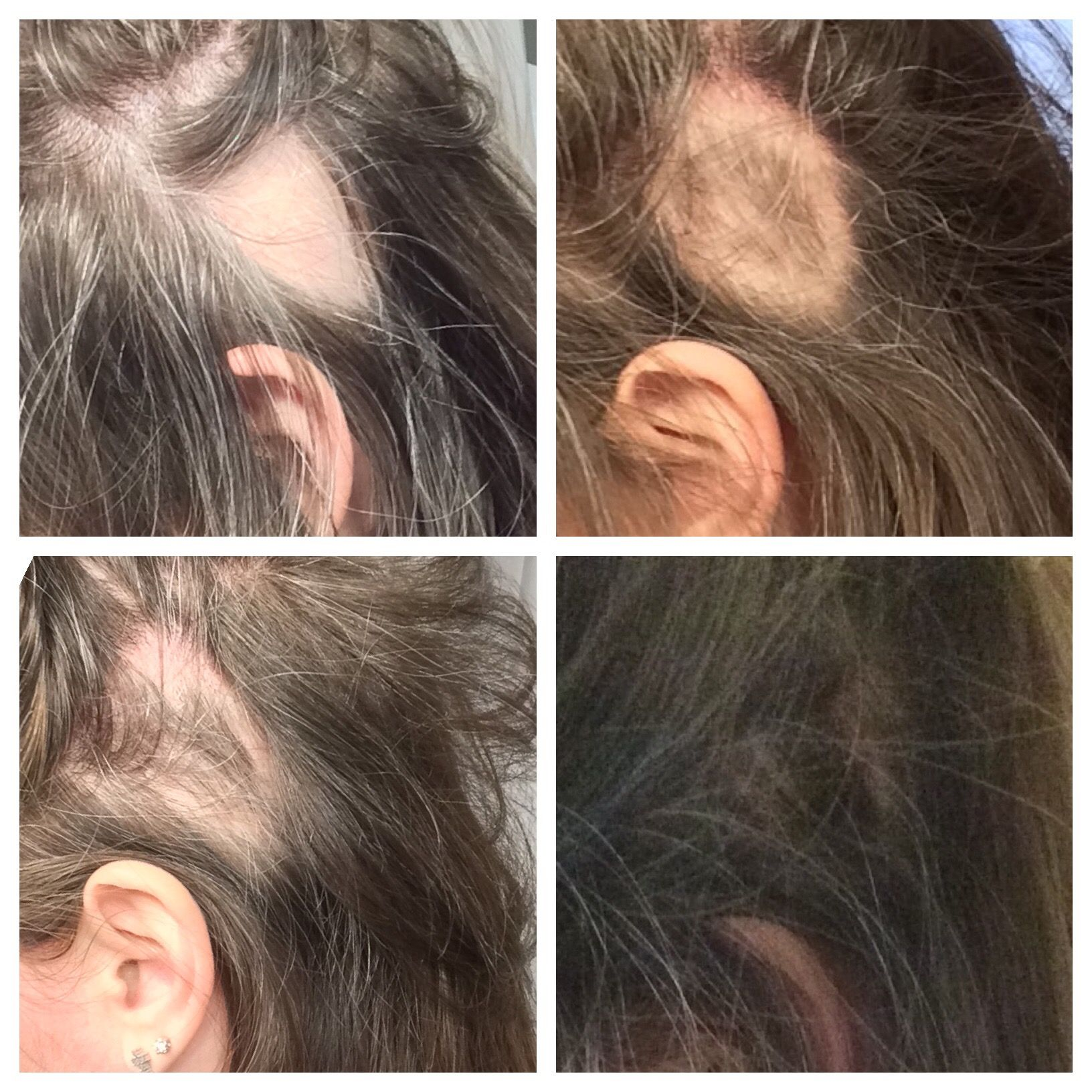 My Personal Hair Loss Experience With Alopecia Areata And Monat