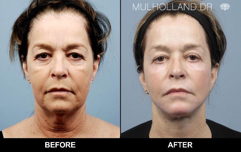 Cosmetic facial surgery toronto