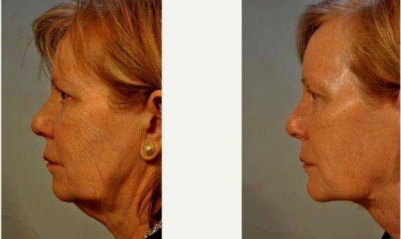 Atlanta facial plastic surgeon