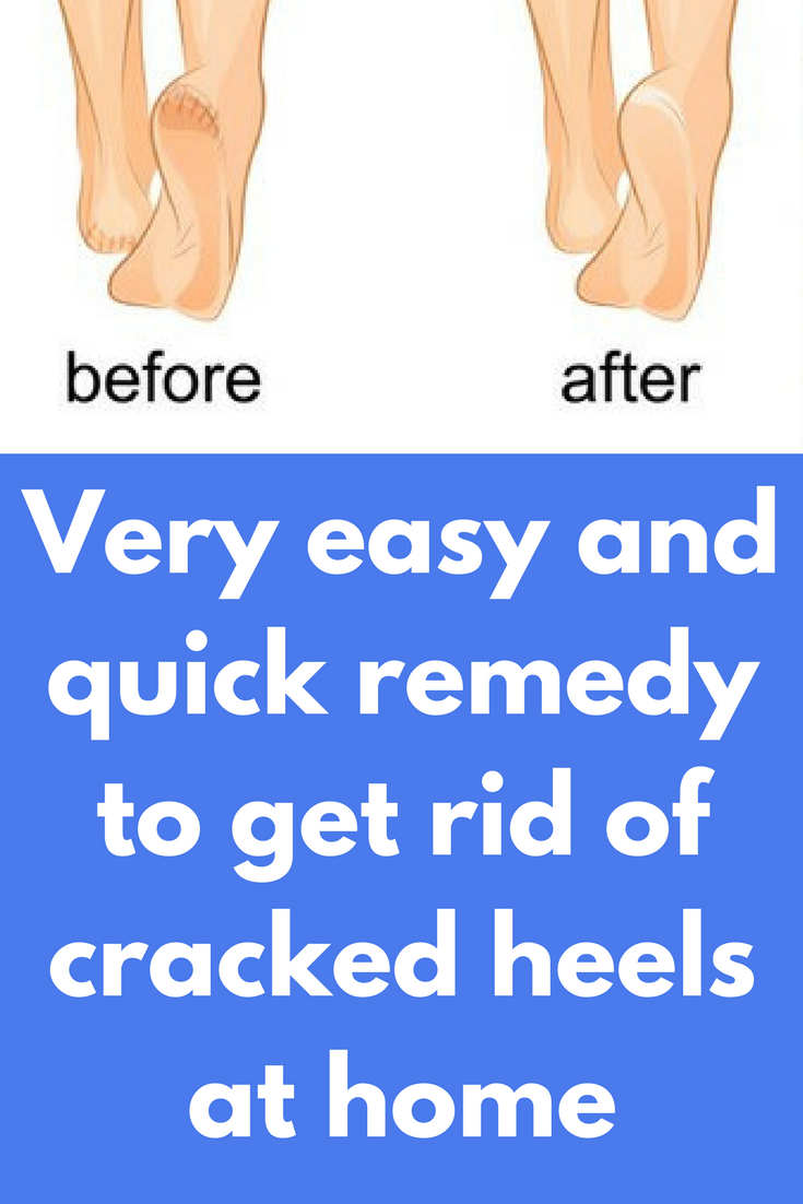 How to make heels soft at home with soda or glycerin 4