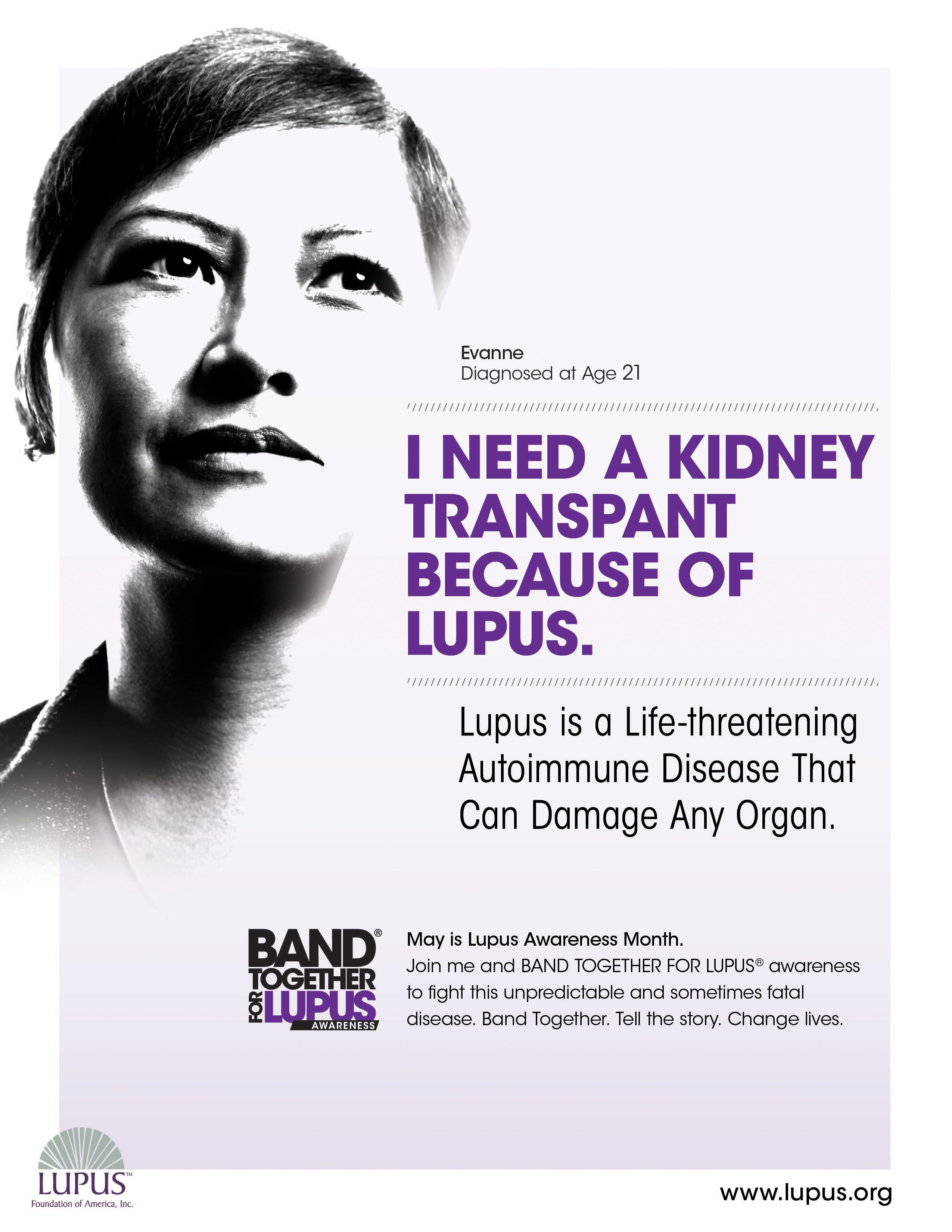 Lupus is a Life-threatening Autoimmune Disease that can ...