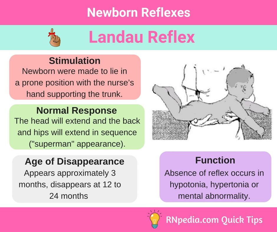 9d174eadb6bff Newborn Reflexes - RNpedia | Maternal & Child Nursing | Pediatric nursing,  Ob nursing, Nursing school graduation