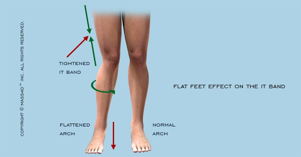 Iliotibial Band Syndrome What Does The Evidence Show This