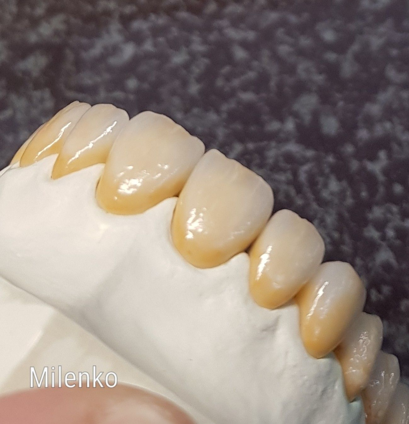 Pin By Boris Vaskovic On Dental Dental Art Dental Ceramics Dental Laboratory