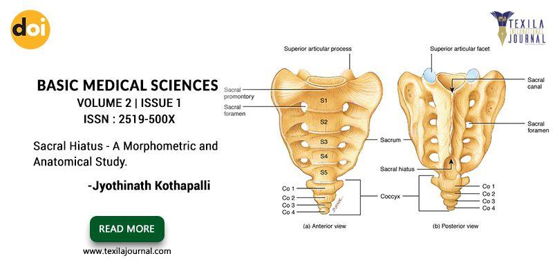 An article on Sacral Hiatus - A Morphometric and Anatomical Study ...