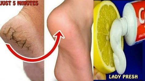 In Just 5 Minutes Get Rid of CRACKED HEELS Permanently Magical Cracked In Just 5 Minutes Get Rid of CRACKED HEELS Permanently Magical Cracked...