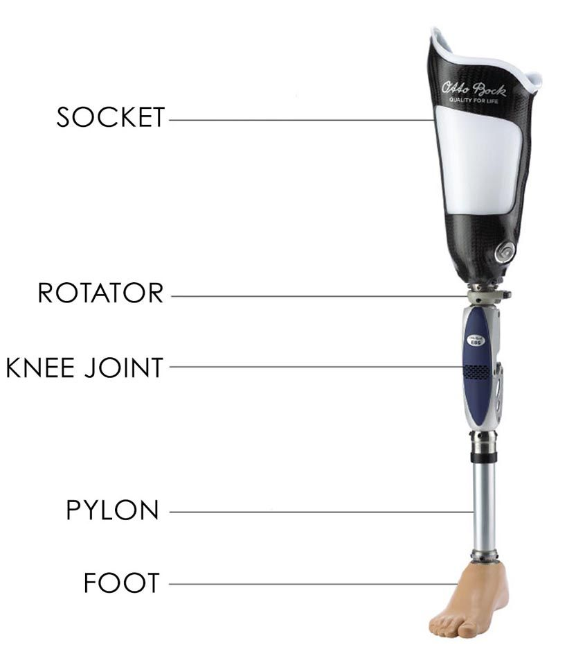 Below Knee Prosthetic Socket Designs And Suspension Systems