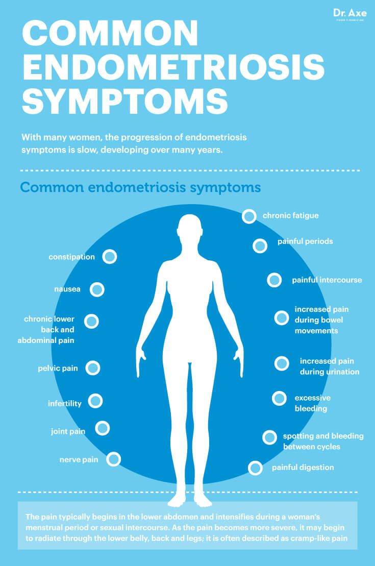What is endometriosis: symptoms and treatment 63