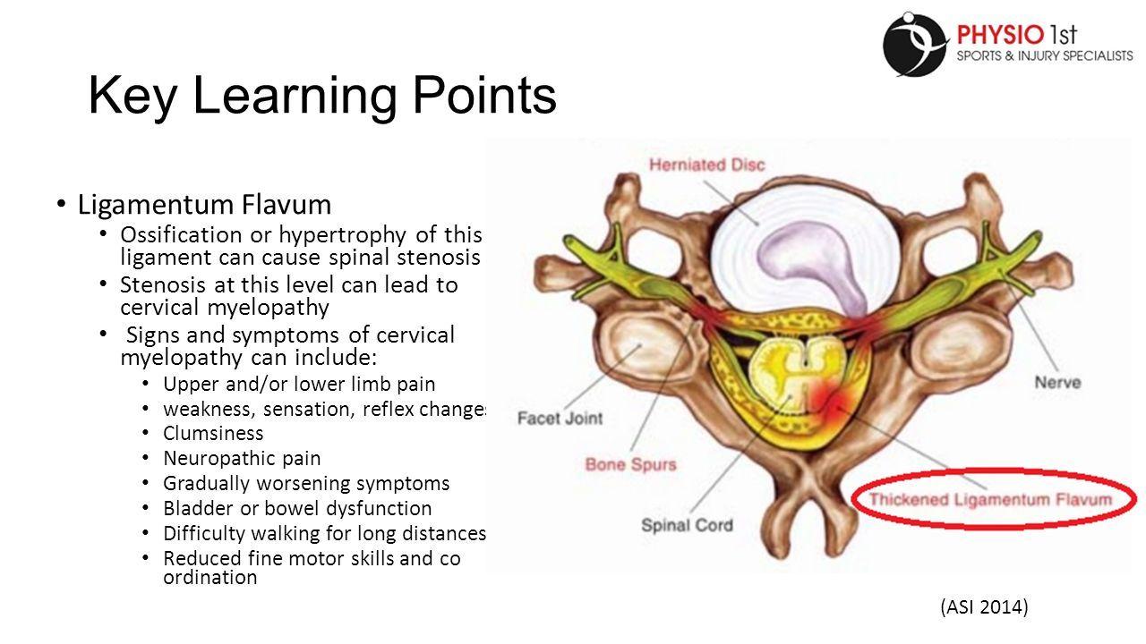 Ligamentum flavum anatomy