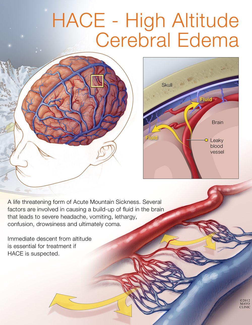 hace  u2013 high altitude cerebral edema