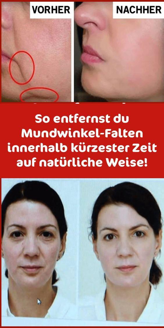 Photo of Entfernen Sie Gesichtsfalten innerhalb von 14 Tagen