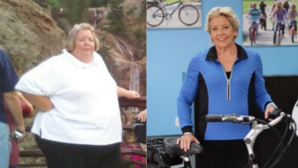 """At 457 pounds, Rhonda Martin could barely walk. Even breathing was a chore. She certainly never imagined that one day she would look like she does now— nearly 300 pounds lighter. """"I was just existing,"""" Martin, of El Cajon, California, told ABC News. """"I had no social interaction with people. My life..."""