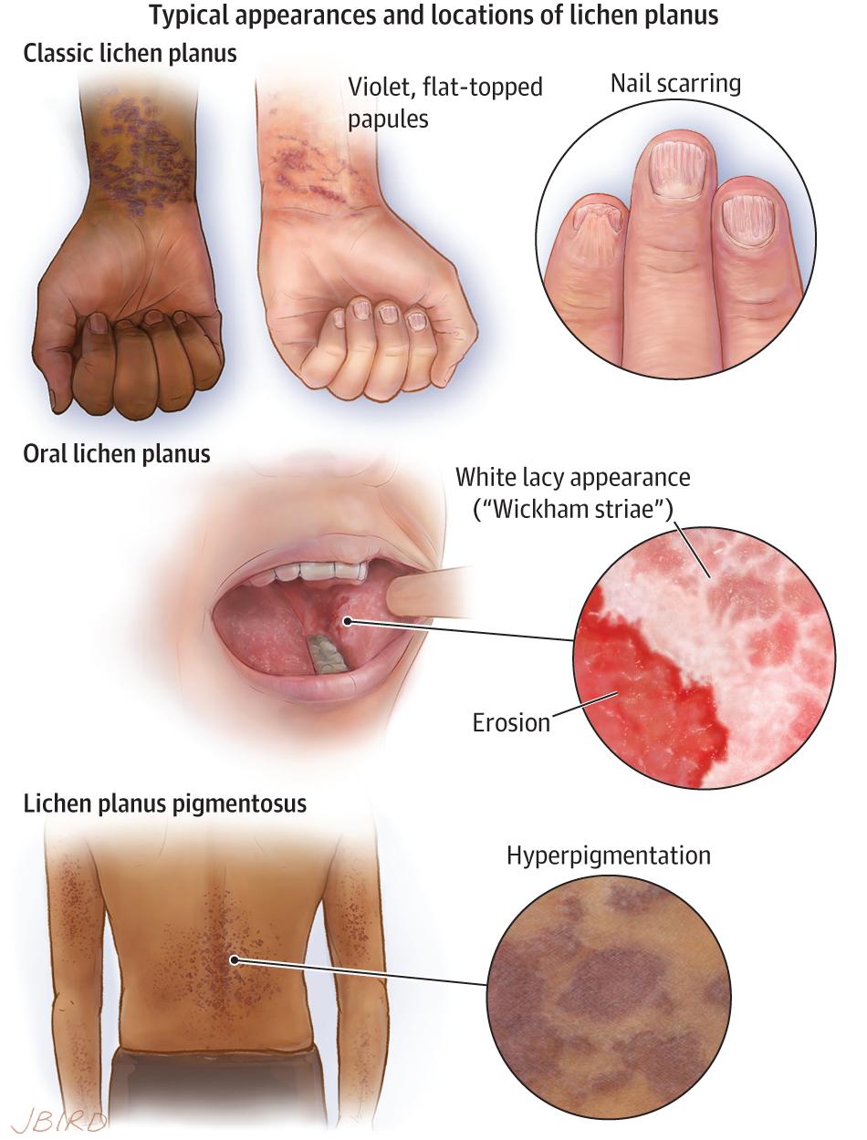 Pin On Jama Dermatology Patient Information