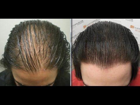 Remedios Naturales Para La Alopecia Hair Loss Shampoo Beauty Natural Hair Styles