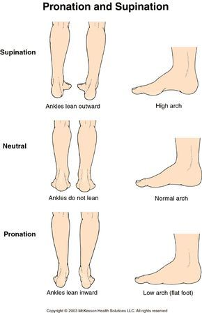 Asics+High+Arch+Walking+Shoes | ... high arches? Do you over-pronate,  supinate, or have a neutral ankle | pain | Pinterest | Scoliosis