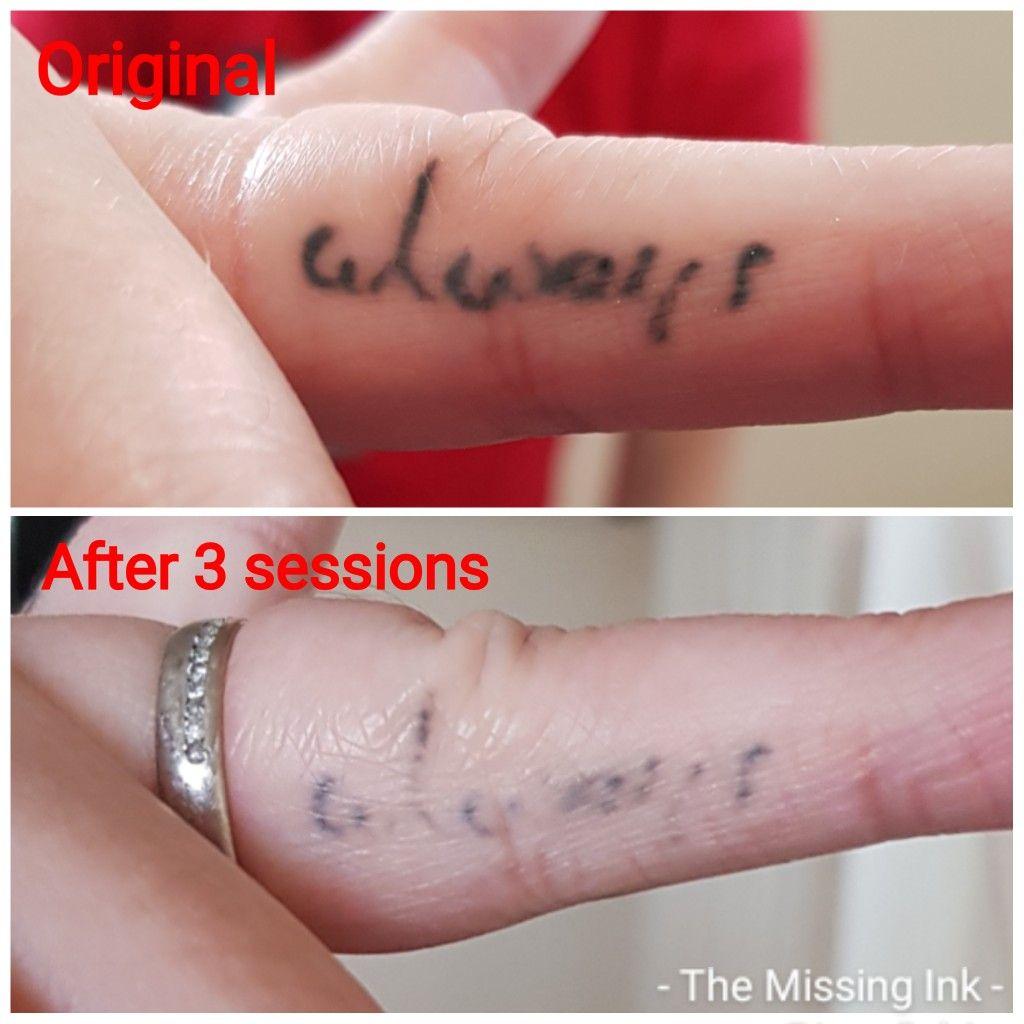 Dark finger tattoo in 2020 laser tattoo removal laser
