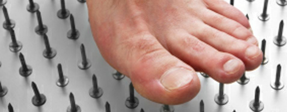 Could Peripheral Neuropathy be What's Causing Your Foot Numbness?