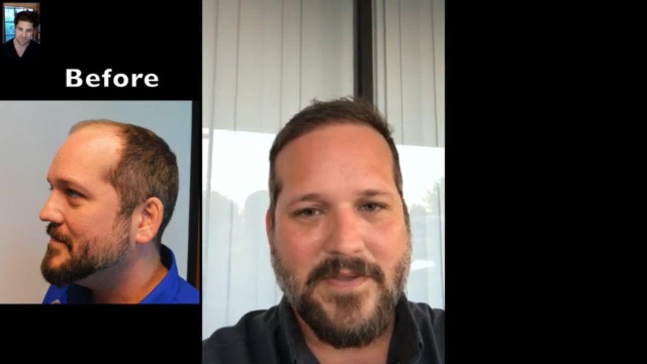9 Months After Hair Transplant Surgery McLean VA Hair