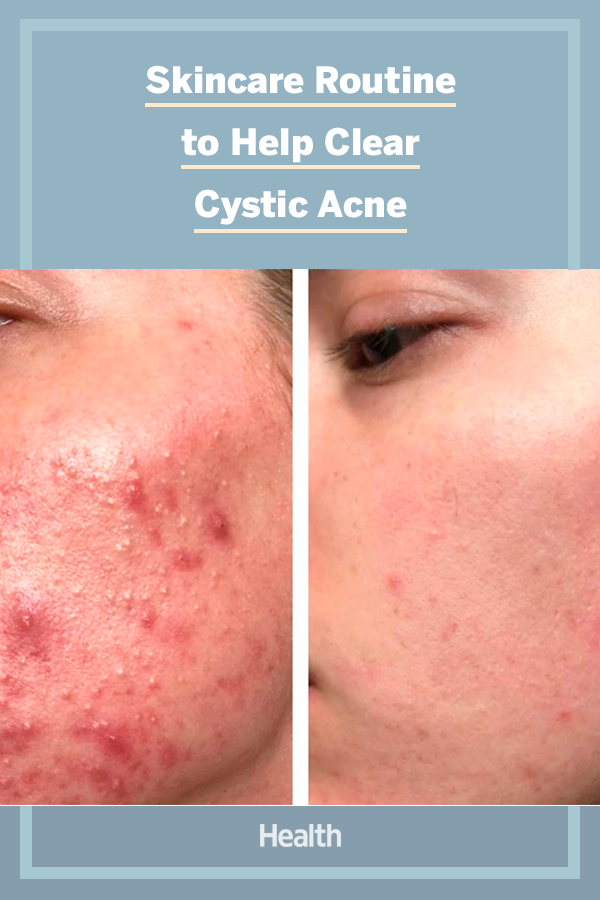 The Exact Skincare Products That Helped Clear This Woman S Cystic Acne In Just 3 Months Cerave Moisturizer Skin Care Cystic Acne
