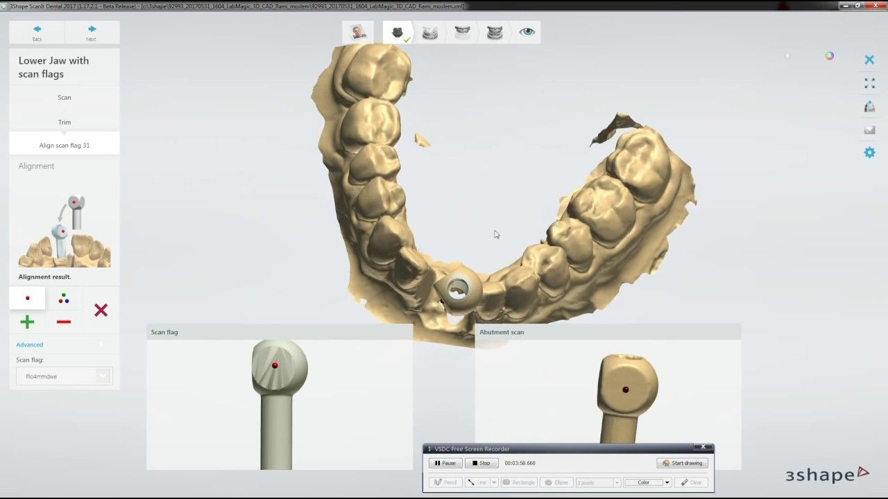 Adaptive Scanning in 3Shape & Implant Scanning Workflow   Digital