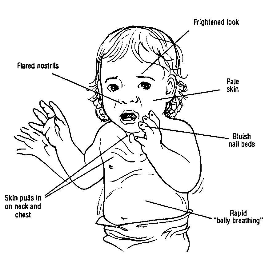Clinical Signs of Respiratory Distress   Picture 1 - Some ...