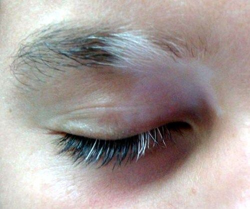 Poliosis Is A Condition That Is Characterized By A Small Patch Of White Hair In Head Hair Eyebrows Or E Tipos De Piel Tratamiento Del Vitiligo Belleza Oculta