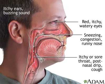 adfc900845a6f775bb6737faf8df3347 - How To Get Rid Of Itchy Throat That Cause Cough