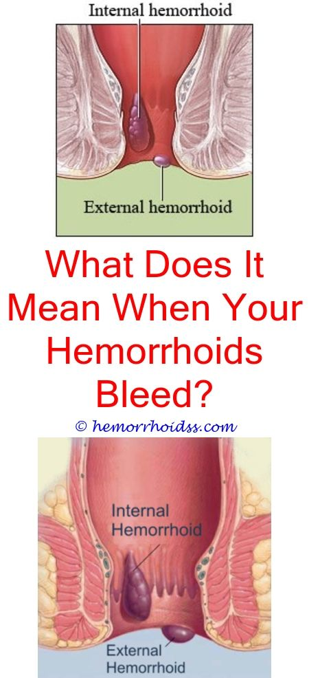 how do you know if you have hemorrhoids or piles where to buy