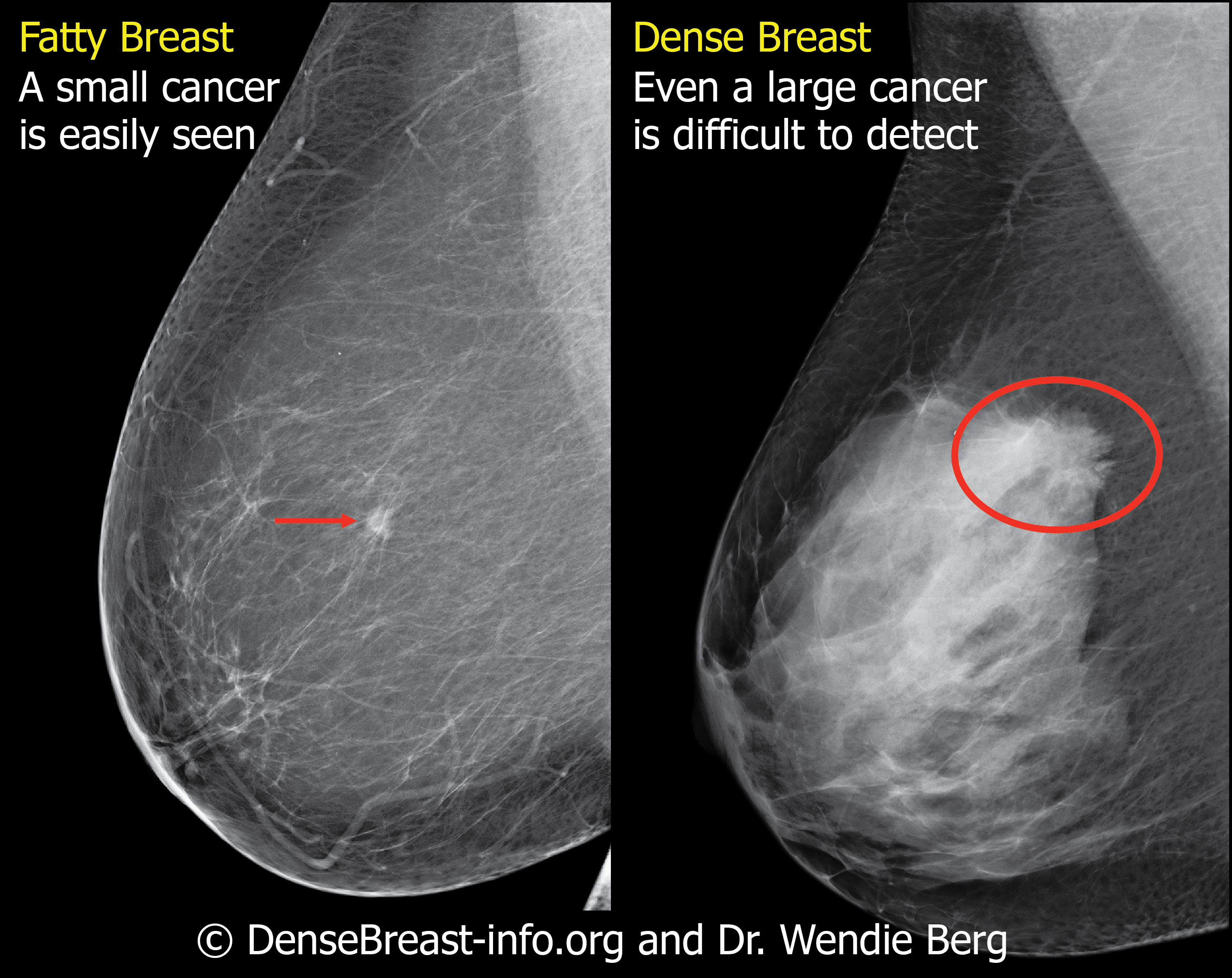why breast density matters on a mammogram breast density resource