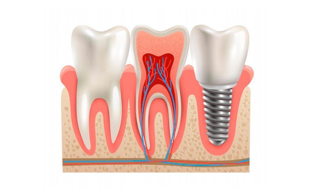 Dental insurance that covers implants dental implant
