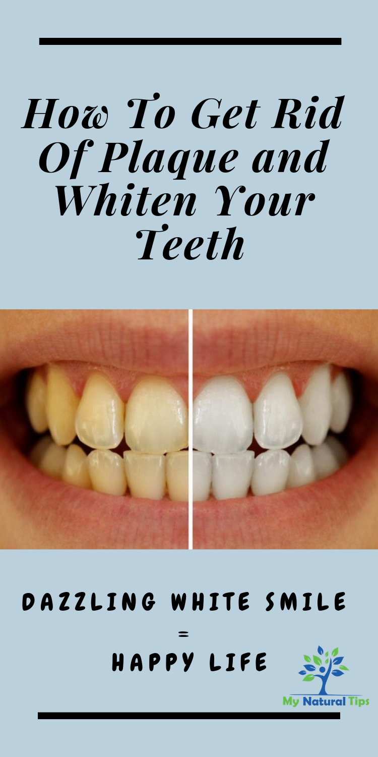 How To Get Rid Of Plaque And Whiten Your Teeth Without Expensive