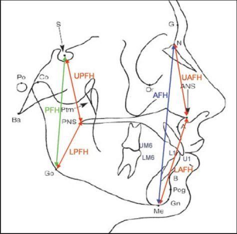 Anterior Facial Height에 대한 이미지 검색결과 Odontología