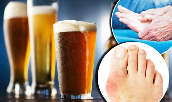 Image result for gout beer