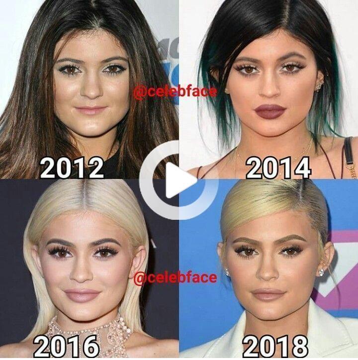 #celebrities #celebrity #celebrities