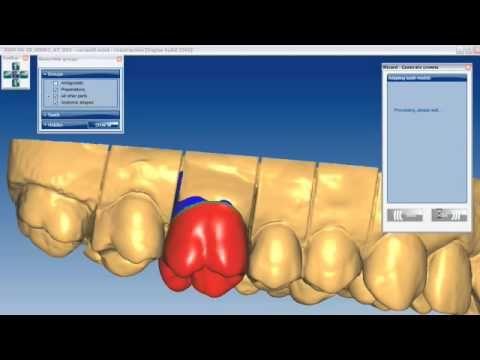 Dental Lab London: Cosmetic Dental Laboratory London